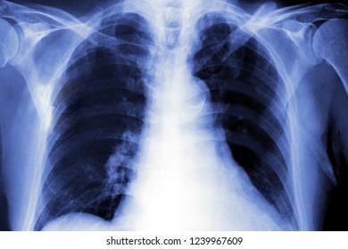 xray image of human chest