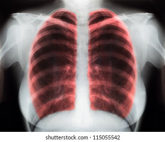 X-Ray Image Of Human Chest for a medical diagnosis