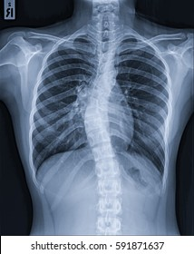 X-Ray Image Of Human Chest : Normal heart size and pulmonary vasculature and  Thoracic scoliosis