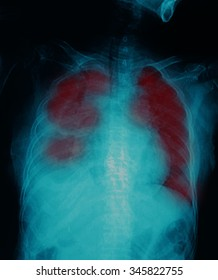 X-Ray Image Of Human Chest  screening