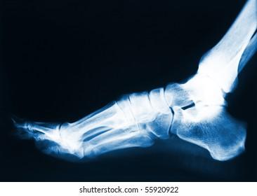x-ray image of human foot