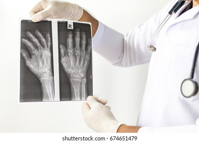 X-Ray image of human hands,Doctor examining a lung radiography, Doctor looking chest x-ray film,Anatomy.