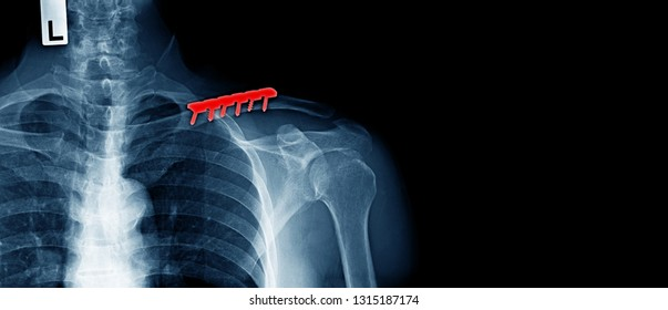 x-ray image of human, post operation of clavicle fracture and fixed, banner design