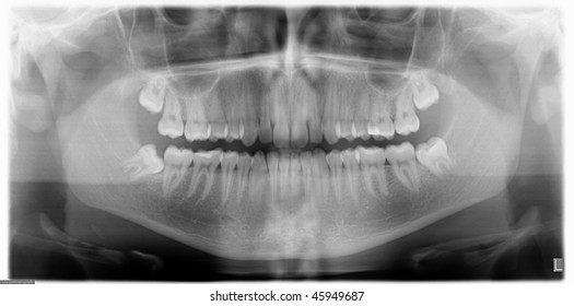 x-ray image of a jawbone