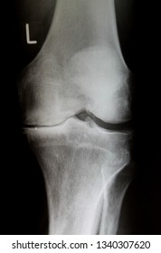 X-Ray image of knee joint with advanced arthrosis (Gonarthrose)