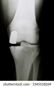 X-Ray image of knee with medial artificial partial prosthesis (Endoprosthesis) in case of arthrosis (joint degeneration)