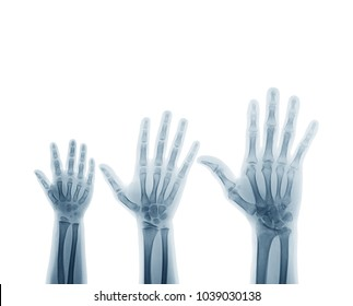 X-ray image of the left hands and wrist joints (front view) show the bone age (left to right: child, young and adult).