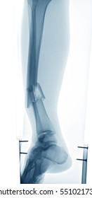 X-ray image of leg with wooden splint and screws, showing tibia and fibula fracture