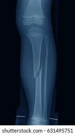 X-ray image of leg with wooden splint, showing tibia and fibula fracture, a 4 year old boy