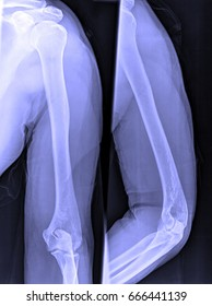 X-Ray image of male shoulder and joints for medical diagnosis.