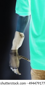 Xray image of a man with a bionic metal hand