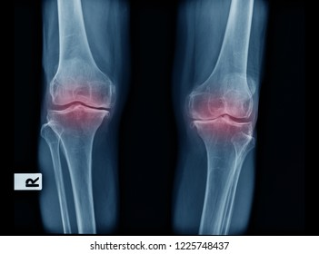 x-ray image old patient with degenerative change of knee joint, OA knee x-ray image PA view in blue tone and black background