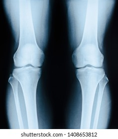 x-ray image patient with degenerative change of knee joint on black background.
