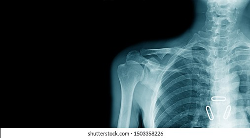 x-ray image of shoulder pain with clavicle fracture and copy space