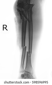 xray image show closed fracture elbow right and radius and ulna bone