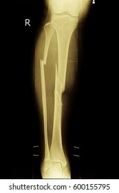 xray image show closed fracture tibia and fibula right leg