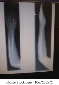 Xray image show fracture left forearm