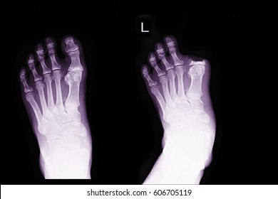 xray image show left foot before and after post operation amputation big toe left