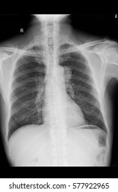 xray image show lung cancer