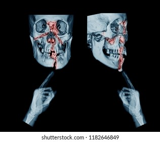 X-ray image showing hands use index fingers point at mandible fractures