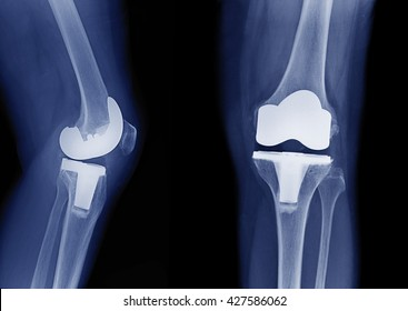 x-ray image of total knee arthroplasty / total knee replacement side view and front view  show metallic joint implant in bone fix knee Osteoarthritis (OA Knee)
