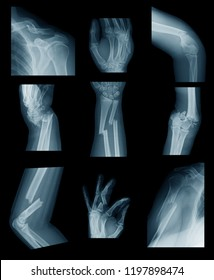 X-ray image of upper extremity fractures