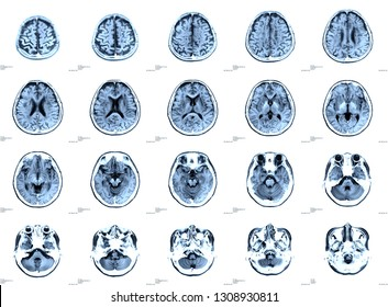 x-ray images brain or magnetic resonance image (mri scan) of patient.