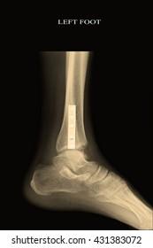 xray left foot