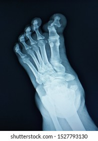 x-ray left foot finding Subluxation of left 1st interphalangeal joint(IP joint)shows medial displacement of left distal phalanx.The rest of body structure shows no fracture or body destruction.