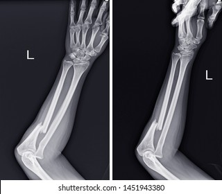 X-ray Left forearm( AP Lat) Fracture proximal Left ulna and soft tissue swelling,medical image concept.