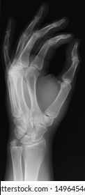 xray of a left hand