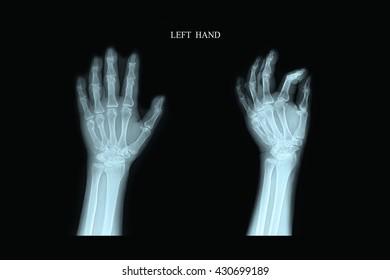 Xray Left Hand