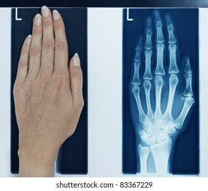 x-ray left hand
