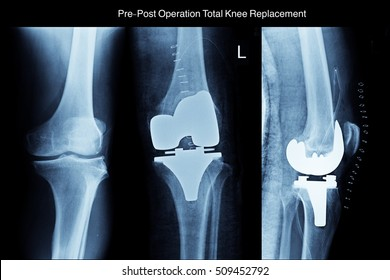 xray left knee and show pre-post operation total knee replacement