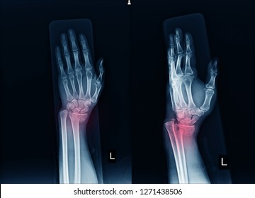 X-ray Left wrist joint AP,LATERAL ,A human traffic accident, Fracture with displacement distal end left radius.Soft tissue swelling in red color point.Medical image concept.