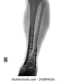 xray of leg and ankle