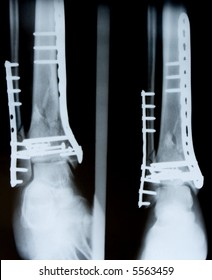 X-ray of leg with metal plates