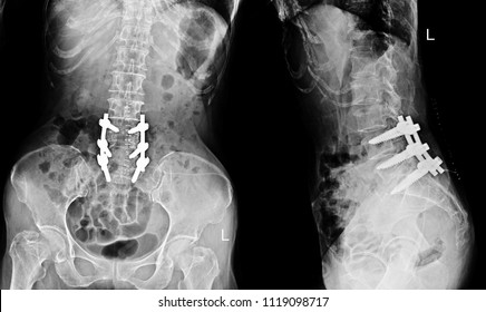 X-ray Lumbar spine a female 68 year old,show post operation Laminectomy with plate and screw internal fixation.