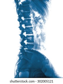 X-ray lumbo-sacral spine and pelvis of asian adult people ,side view