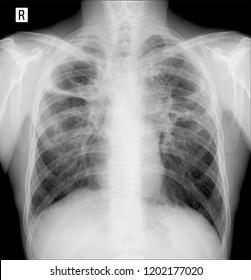 X-ray lungs. Pulmonary fibrosis. Post tuberculosis.