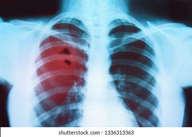 X-ray of the lungs of a sick person