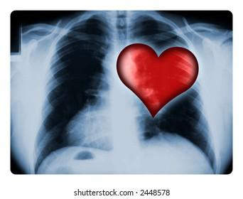 X-ray of a male chest with one illustrated red heart.