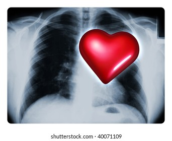 X-ray of a male chest showing one big red heart