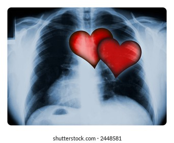 X-ray of a male chest with two illustrated red hearts.