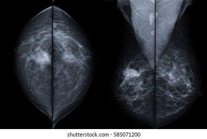X-ray mammogram image of breast with cancer. - breast cancer of right breast.