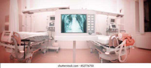 X-ray monitor in panoramic ICU ward.