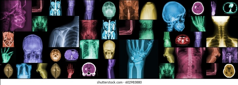 X-ray multiple part of adult. Collection X-ray part of human.