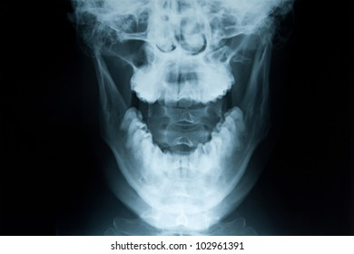 X-ray of a neck