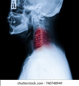 X-ray of neck and cervical spine side view. Image of radiography from patient who have neck pain, nerve root compression, numbness at arm hand wrist or finger