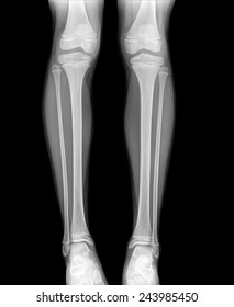xray of normal leg childe image